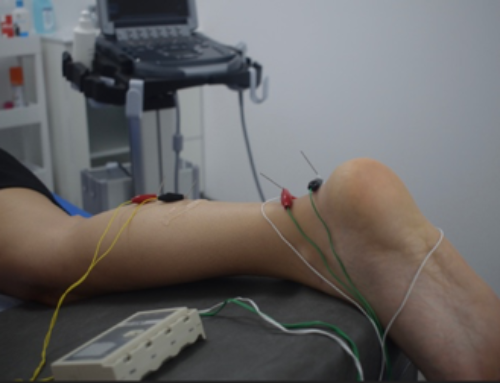 Neuromodulación