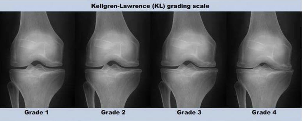Artrosis rodilla. Clasificación radiológica de Kellgren y Laweance, grados de artrosis