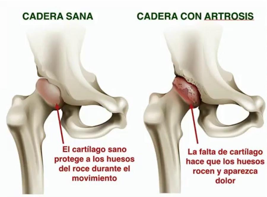 artrosis de cadera o coxartrosis. Infiltración con ácido hialurónico