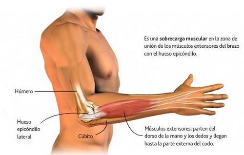 epicondilitis o codo de tenista. Diagnóstico y tratamiento en Clínica Altamira.